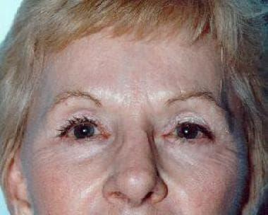 Postoperative view (2 y), endoscopic brow lift sur