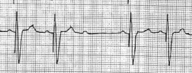 This is a typical example of ventricular oversensi