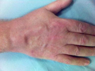 Synovitis of the wrist with extensor tenosynovitis