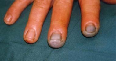 Grade 3 hydrofluoric (HF) acid burns of the finger