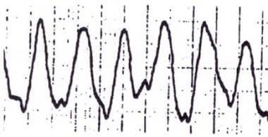 Sinusoidal wave.