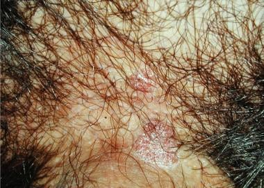 Bowenoid papulosis. Lesions at the base of the sha