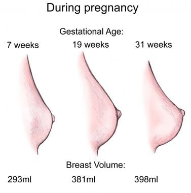 Breast changes during pregnancy.