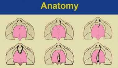 Spectrum of cleft palate morphologies (from upper