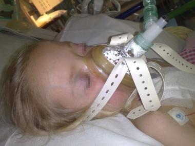 Continuous positive airway pressure (CPAP) adminis