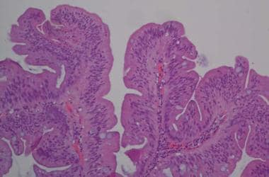 Traditional serrated adenoma. Image courtesy of Ma