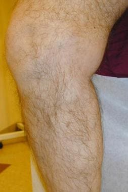 Varicose vein after treatment with endovenous lase