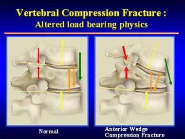 Once an anterior wedge compression fracture has oc