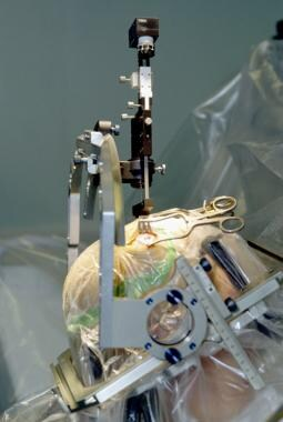 Insertion of an electrode during deep brain stimul