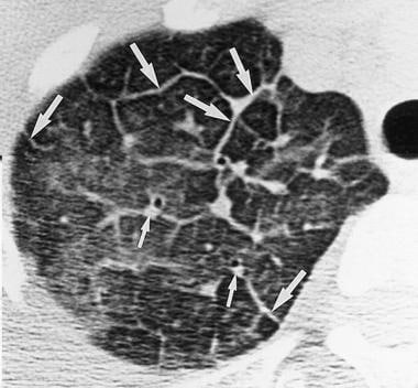 Acute eosinophilic pneumonia. High resolution CT s
