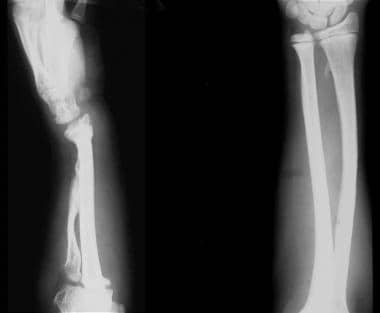 (Left) Plain radiograph of the left forearm in a 1