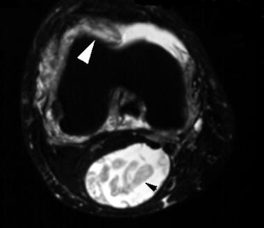 Axial, T2-weighted magnetic resonance image of the