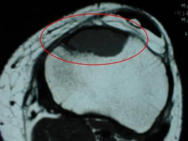 T1-weighted transverse MR image of the proximal ti