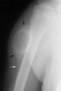 Anteroposterior radiograph obtained 5 weeks after