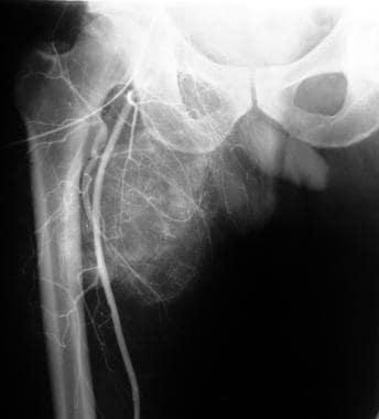 Moderately hypervascular tumor in the right upper
