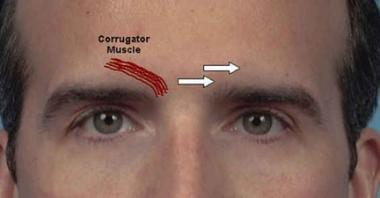 Corrugator muscle injections.