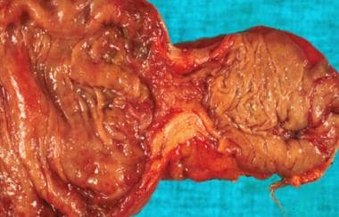 Surgery was performed for colonic obstruction in a