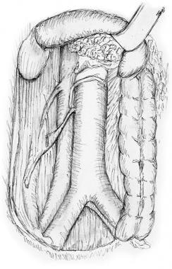 Duodenum and major vessels seen after full mobiliz