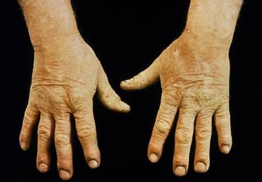 Chronic irritant contact dermatitis of the hands i