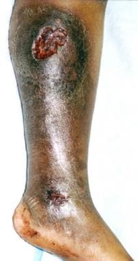 Typical chronic medial leg ulceration associated w