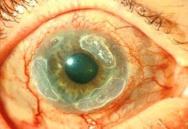 Peripheral ulcerative keratitis in the right eye o