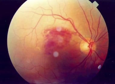 This 42-year-old woman with hypertension noticed a