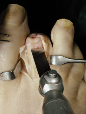 Claw toe. Remove the distal portion of the proxima