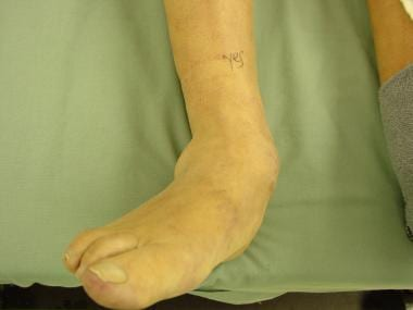 Clinical view of valgus foot deformity with abduct
