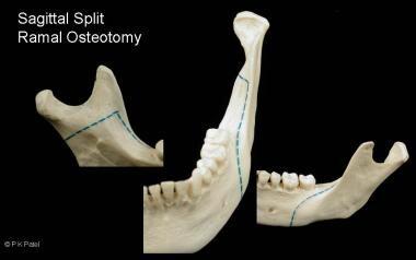 Illustration of the sagittal split ramal osteotomy