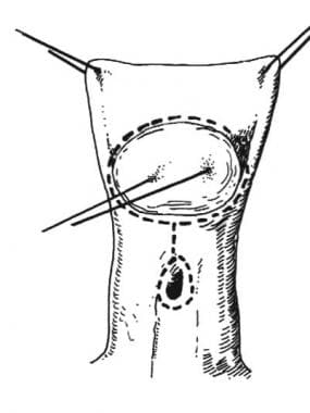 Distal hypospadias. A traction suture is placed th