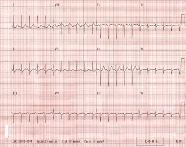 Sinus tachycardia. Note that the QRS complexes are