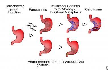 Atrophic gastritis. Schematic representation of He
