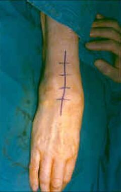 Universal incision of the wrist.