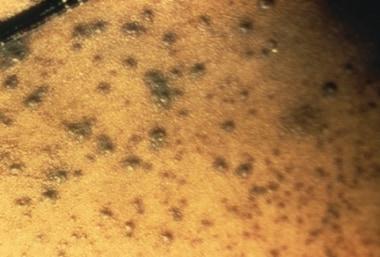 Hemorrhagic-type variola major lesions. Death usua
