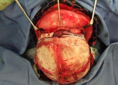 Completed correction of left unilateral coronal cr