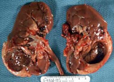 Nephrectomy specimen from a patient with a large b
