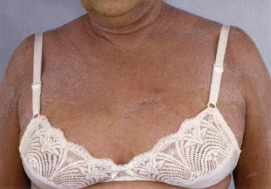 Exfoliative dermatitis diffuse skin involvement