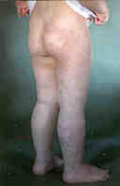 Klippel-Trenaunay syndrome in a young person. Note