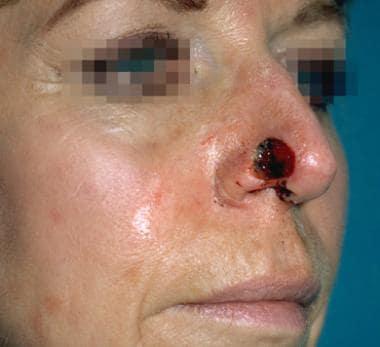 Case 4. Preoperative nasal defect.