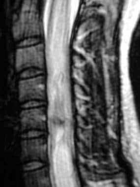 T2-weighted sagittal image demonstrates the hemosi