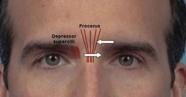 Procerus muscle injections.