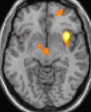 Cluster headache: Functional imaging shows activat