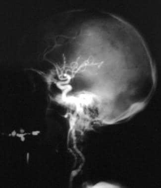 Cerebral angiogram of the left carotid artery terr
