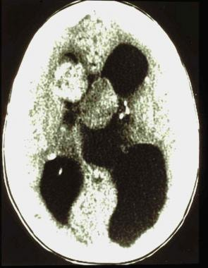Hydrocephalus from a subependymal giant cell astro