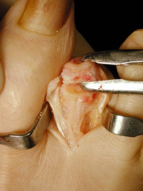 Claw toe. Grasp the end of the proximal phalanx fo