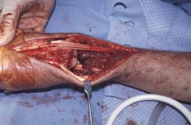 Intraoperative photograph of the resection bed of