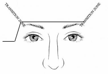Elevating one brow more than the other requires an