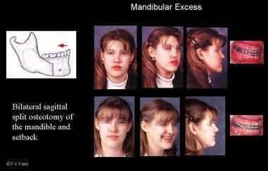 Illustration of mandibular excess. The patient und