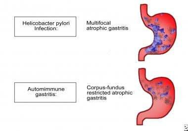 Patterns of atrophic gastritis associated with chr