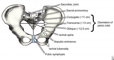 The anterior view of a pelvis.